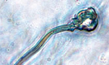 A microscope image of In Vitro Derived (IVD) sperm